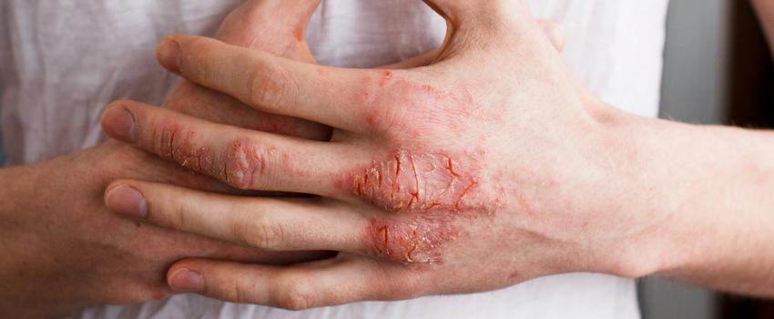 濕疹皮膚炎